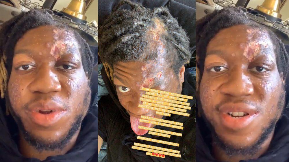 OG Maco termina con la cara destrozada por culpa de una negligencia médica